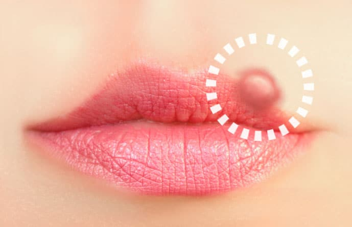 Cold Sores and Canker Sores: How To Prevent Them With Natural Remedies and Laser Treatments