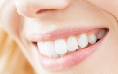 How Long Will My Dental Restoration Last?