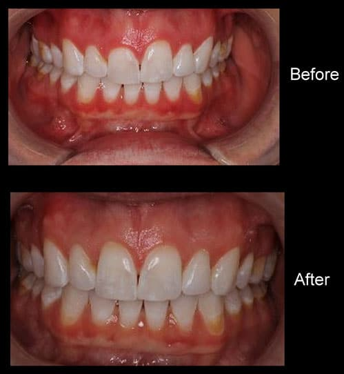 Get Rid of Your Gummy Smile!