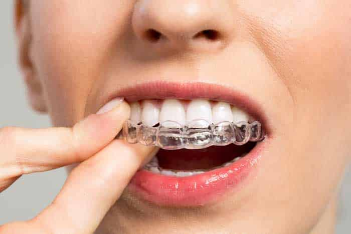 Is DIY Orthodontics The Right Option For Me?