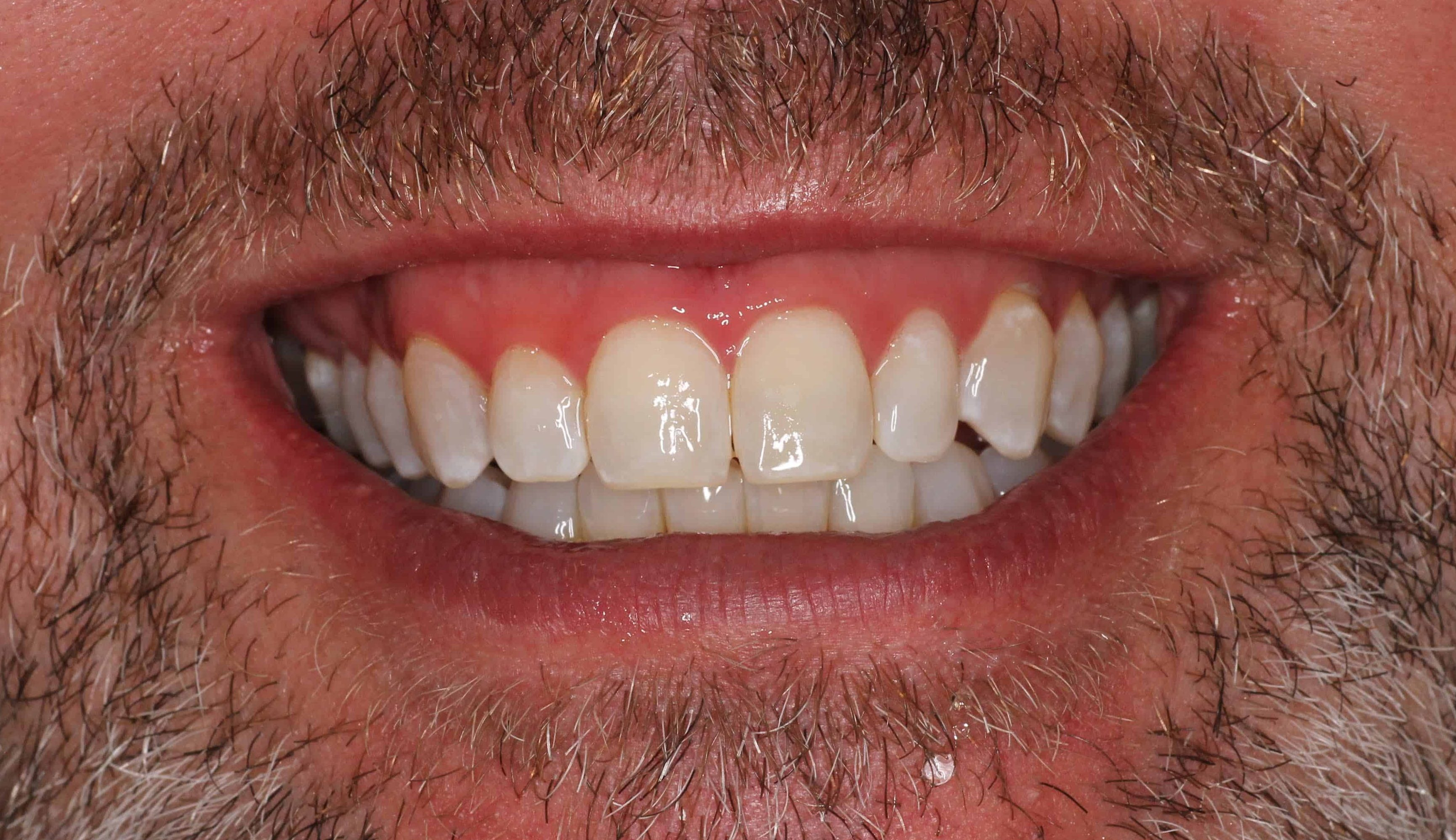 After Laser Whitening