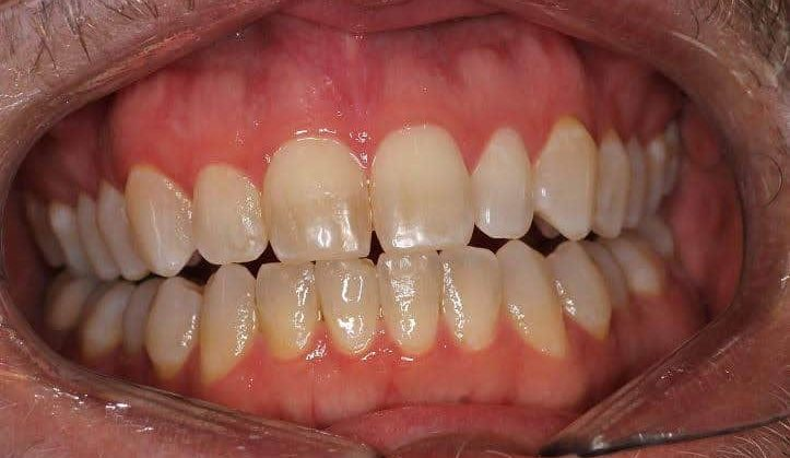 Before Laser Whitening