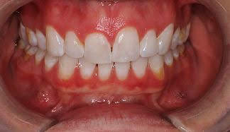 Gingivectomy Before